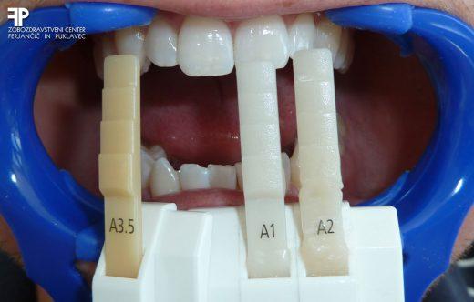 Nega zob po beljenju