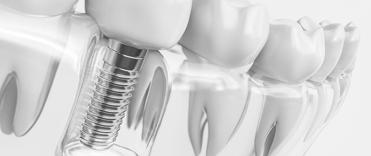 Implantati zobni vsadki